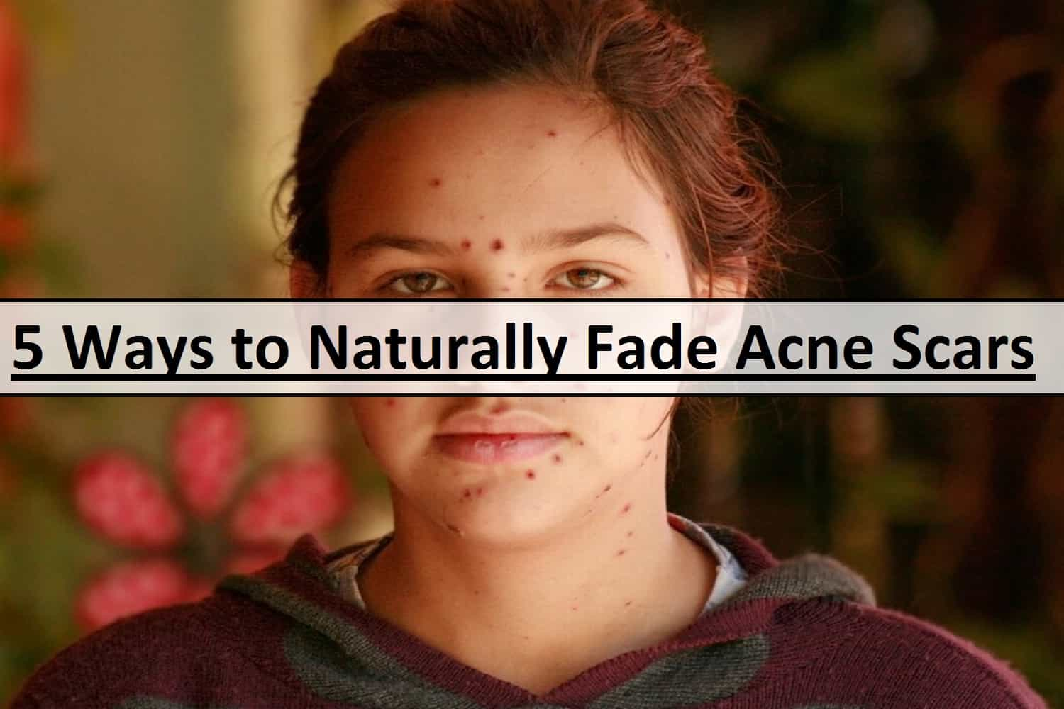 5 Ways to Naturally Fade Acne Scars