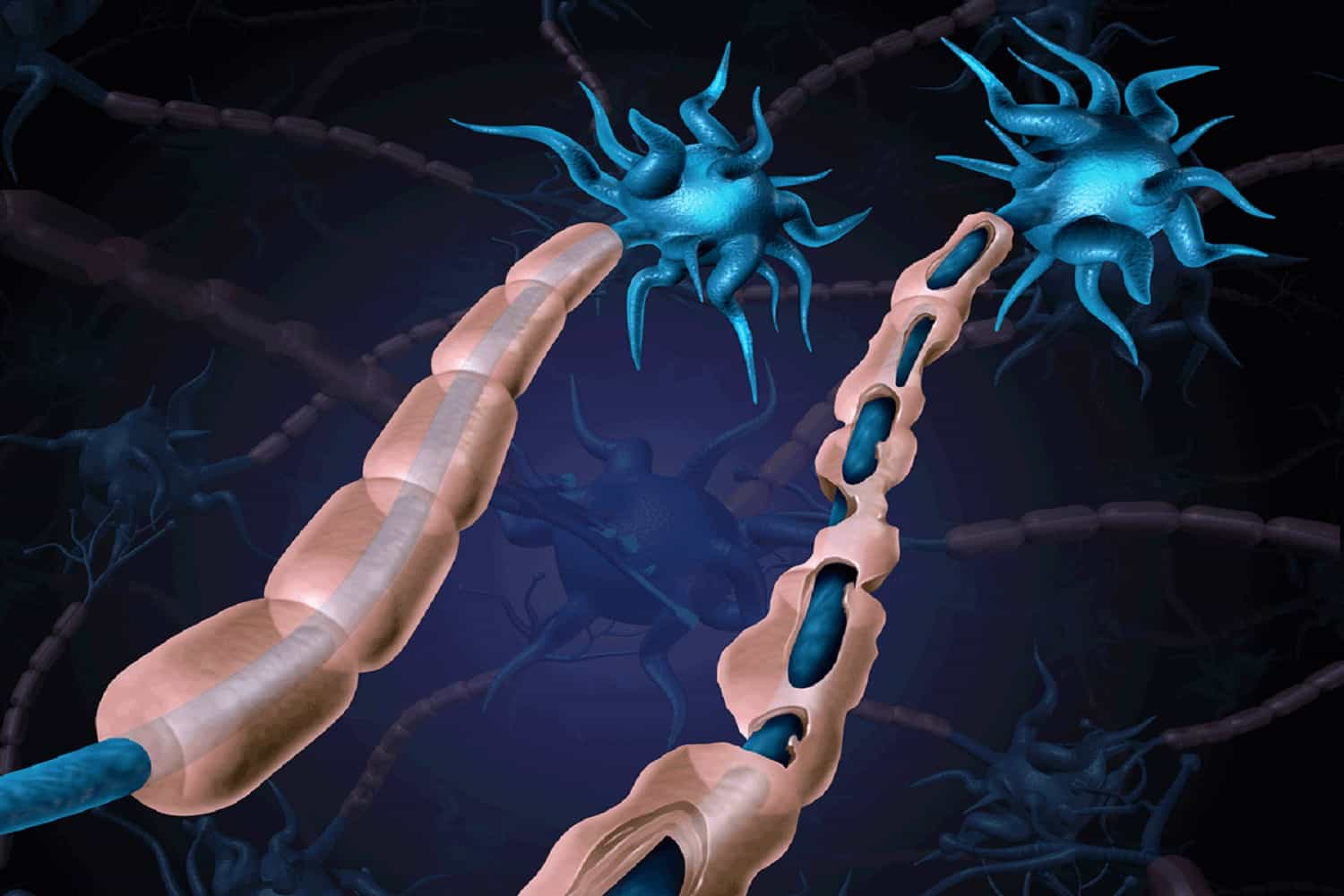 signs of multiple sclerosis