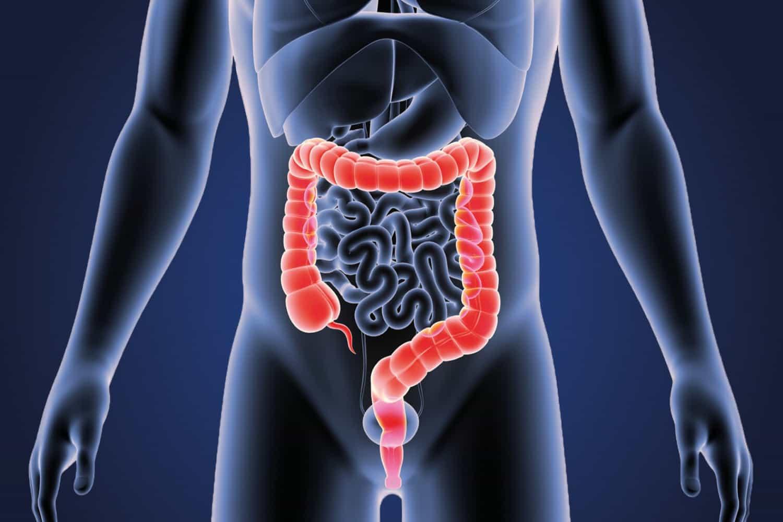 symptoms of colorectal cancer
